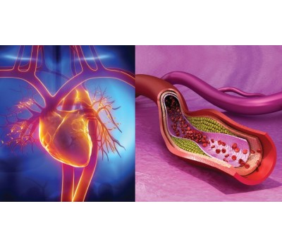 Arterial Plaque Rupture